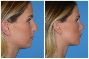 Nose Surgery in Los Angeles