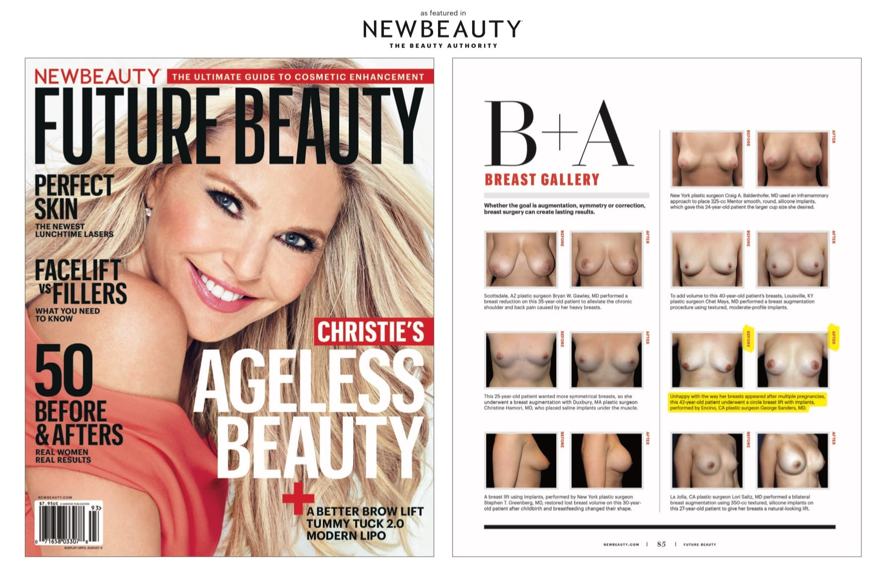 Dr. Sanders' Breast Lift Before and After Featured in New Beauty Magazine
