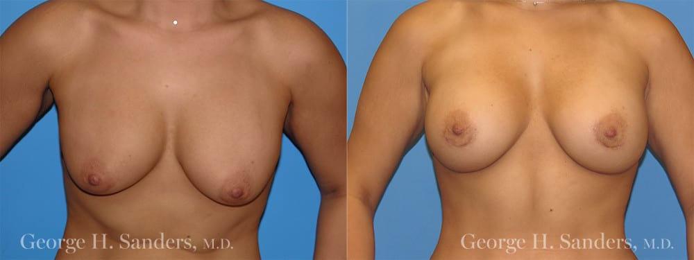 Patient 1a Breast Capsules Before and After