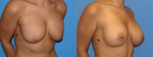 dr-sanders-los-angeles-Breast-capsules_patient-1-2