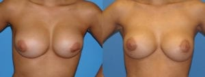 Patient 2a Breast Capsules Before and After