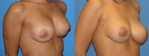 Patient 2b Breast Capsules Before and After