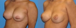 Patient 2c Breast Capsules Before and After