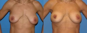 dr-sanders-los-angeles-Breast-capsules_patient-3-1