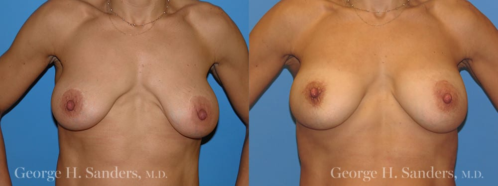 Patient 3a Breast Capsules Before and After