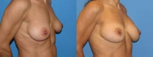 dr-sanders-los-angeles-Breast-capsules_patient-3-2