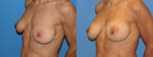 dr-sanders-los-angeles-Breast-capsules_patient-3-3