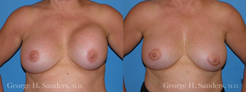 Patient 4a Breast Capsules Before and After