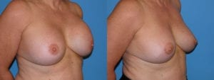 Patient 4b Breast Capsules Before and After