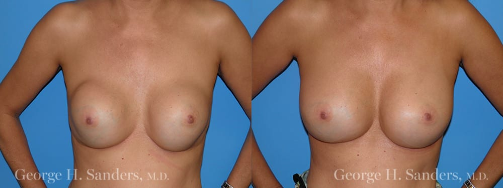 Patient 5a Breast Capsules Before and After