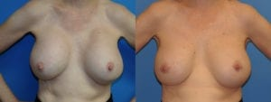 dr-sanders-los-angeles-Breast-capsules_patient-6-1