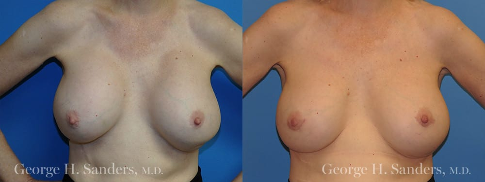 Patient 6a Breast Capsules Before and After