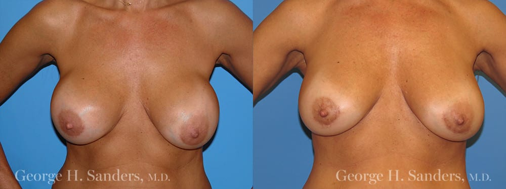 dr-sanders-los-angeles-Breast-capsules_patient-7-1
