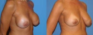 Patient 7b Breast Capsules Before and After