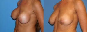 Patient 7c Breast Capsules Before and After