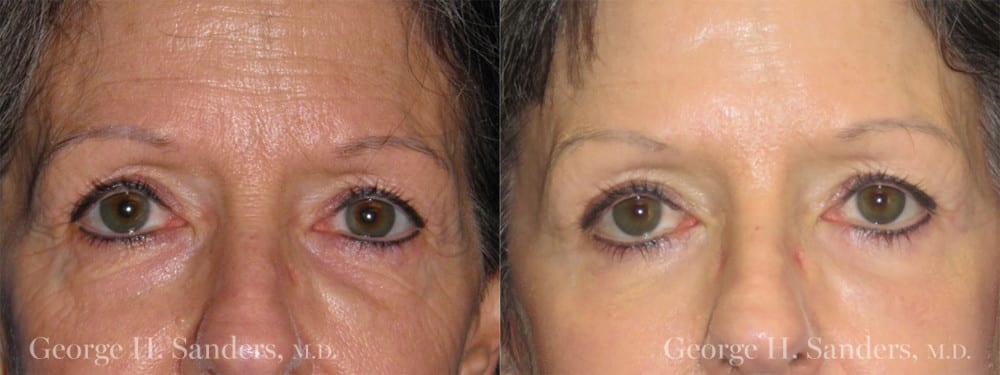 Patient 1a Brow Lift Before and After