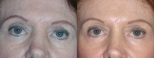 Patient 5a Brow Lift Before and After