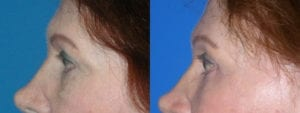 Patient 5b Brow Lift Before and After