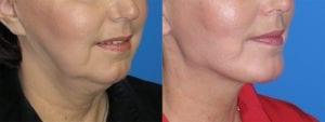 Patient 1b Chin Augmentation Before and After