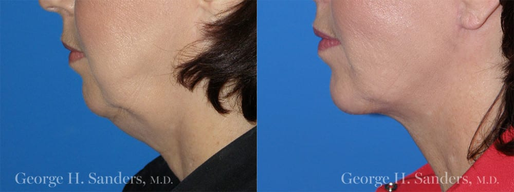 Patient 1a Chin Augmentation Before and After