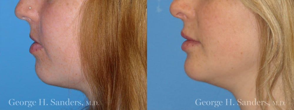 Patient 3a Chin Augmentation Before and After