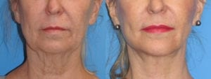 Patient 4c Chin Augmentation Before and After