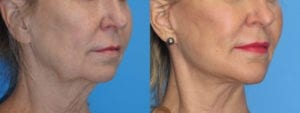 Patient 4b Chin Augmentation Before and After