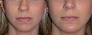 Patient 5b Chin Augmentation Before and After