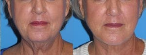 Patient 6c Chin Augmentation Before and After