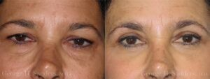 Patient 1a Eyelid Surgery Before and After