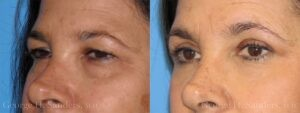 Patient 1c Eyelid Surgery Before and After
