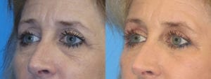 Patient 2b Eyelid Surgery Before and After