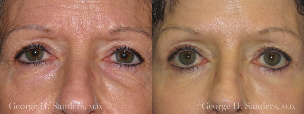 Patient 3a Eyelid Surgery Before and After