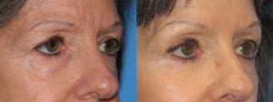 Patient 3b Eyelid Surgery Before and After