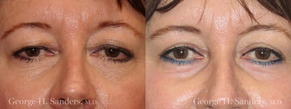Patient 4a Eyelid Surgery Before and After