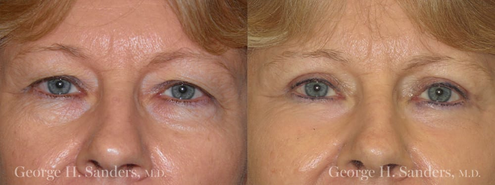 Patient 5a Eyelid Surgery Before and After