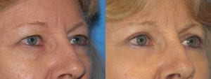 Patient 5b Eyelid Surgery Before and After