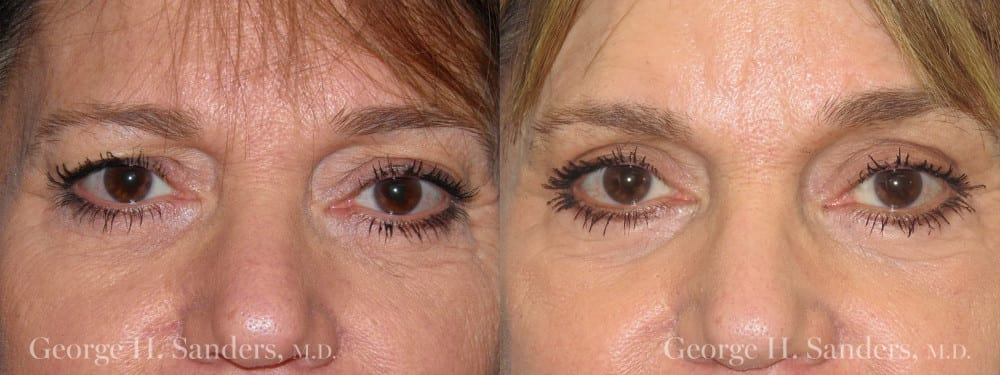 Patient 6a Eyelid Surgery Before and After
