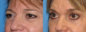 Patient 6b Eyelid Surgery Before and After
