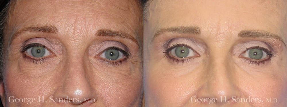 Patient 7a Eyelid Surgery Before and After