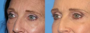 Patient 7b Eyelid Surgery Before and After