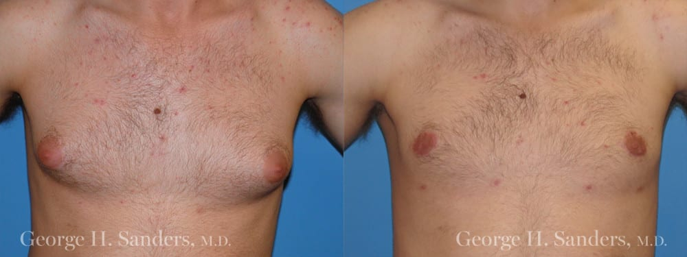 Patient 2a Gynecomastia Before and After