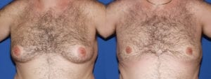 Patient 5a Gynecomastia Before and After