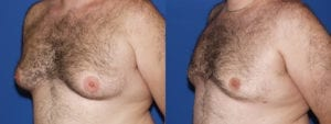 Patient 5c Gynecomastia Before and After