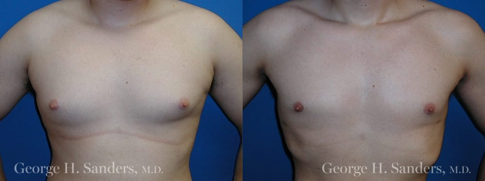 Patient 6a Gynecomastia Before and After