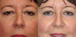 Patient 2a Laserbrasion Before and After