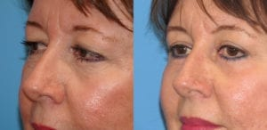Patient 2b Laserbrasion Before and After