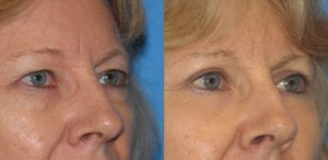 Patient 5b Laserbrasion Before and After