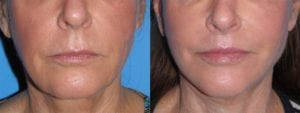 dr-sanders-san-fernando-valley-Lip-lift_patient-1-1