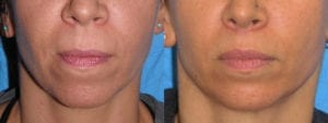 dr-sanders-san-fernando-valley-Lip-lift_patient-3-1